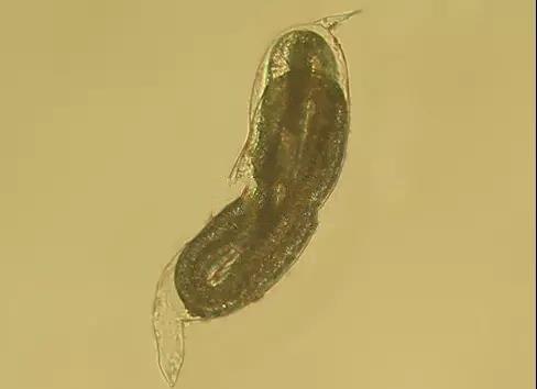 根线虫长什么样子?什么药能杀死?