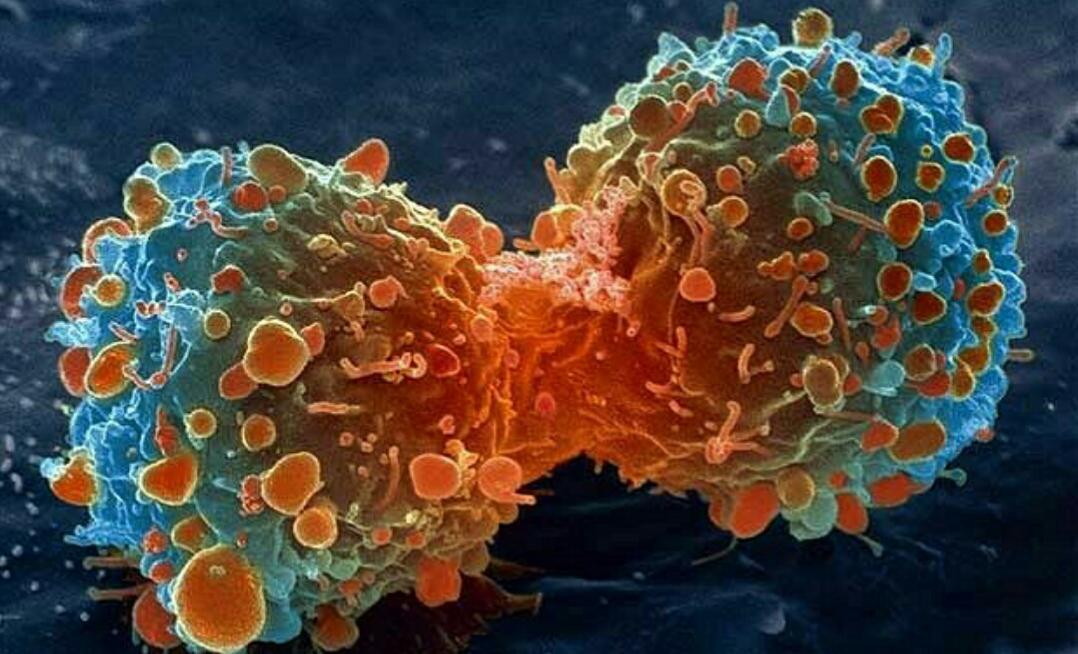 催眠能治疗癌症吗