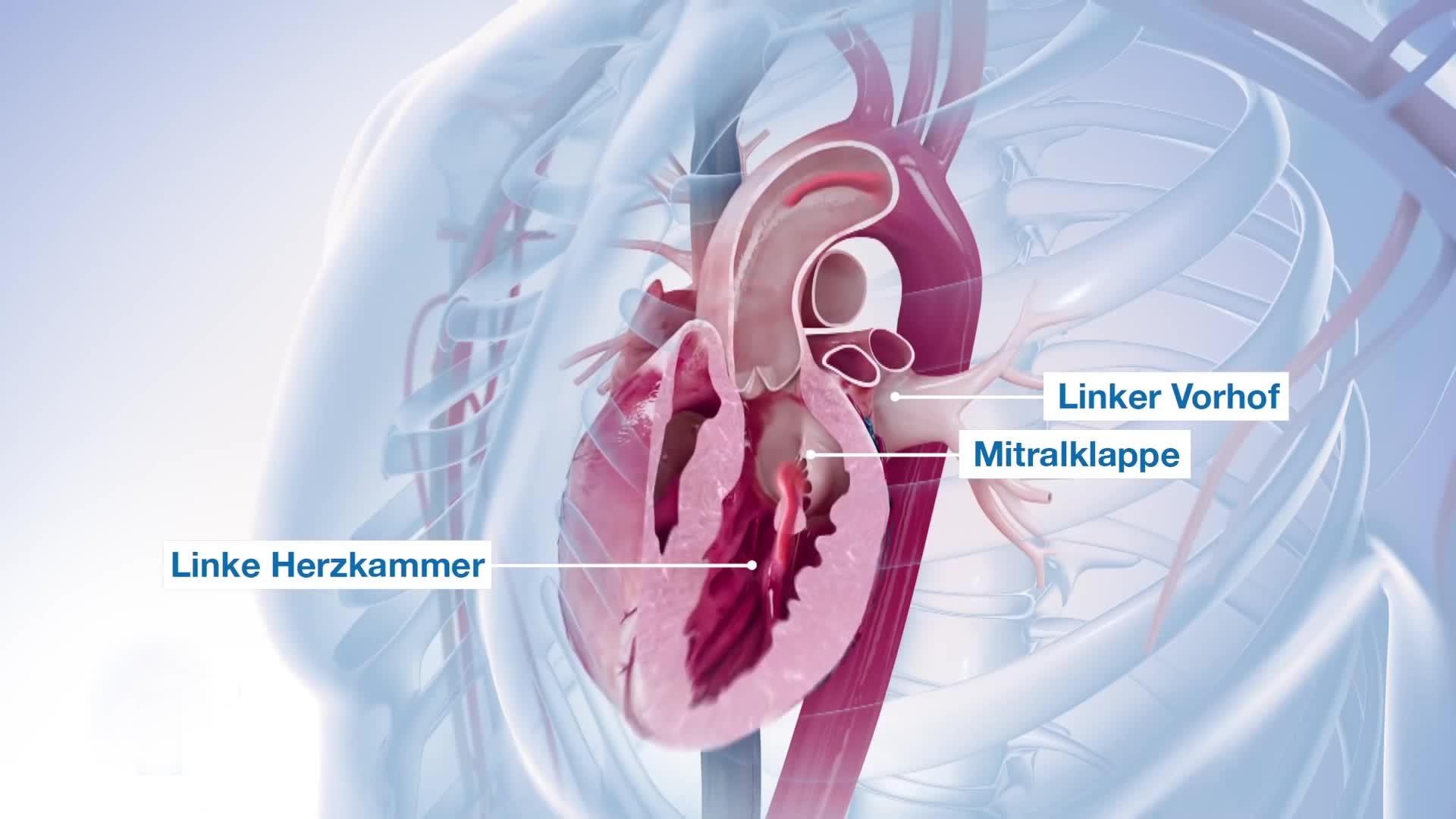 三维动画制作-心脏手术
