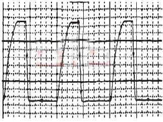 IGBT输出信号波形图