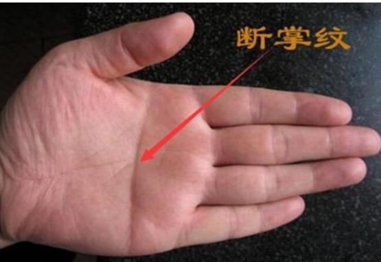 断掌是三大主线同源,天纹和人纹合二为一,横贯全掌