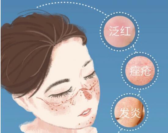 戴口罩让皮肤过敏、长痘?吃这种食物助你清热消痘