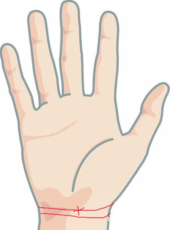 十字纹手腕线
