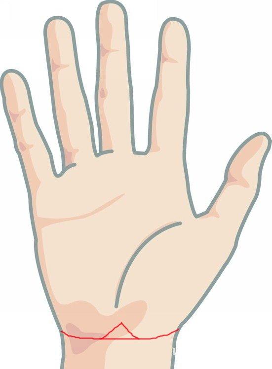 正斜角形手腕线