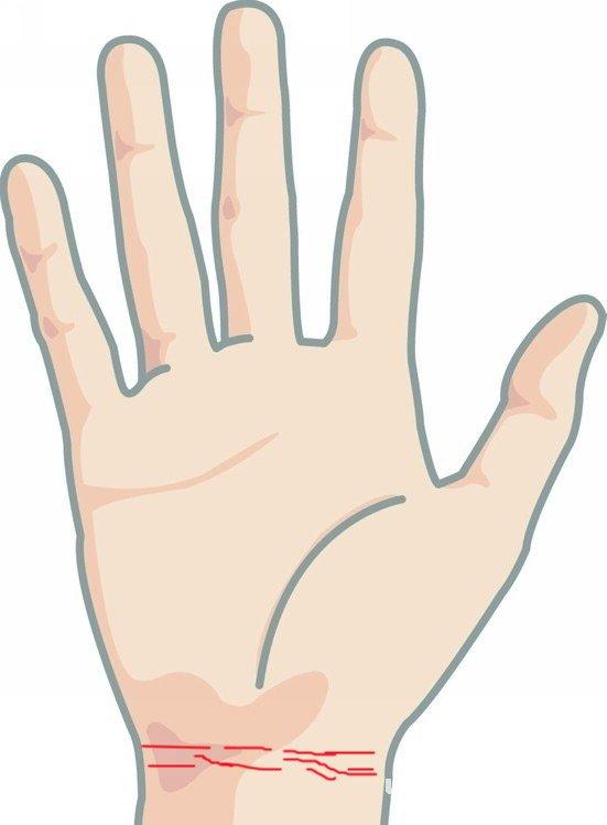 手腕网上出現很多直纹