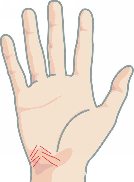 动脉线坐落于手掌下