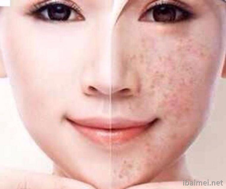 祛斑后能用化妆品吗?