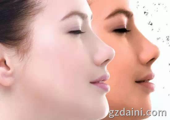 用白醋洗脸的正确方法