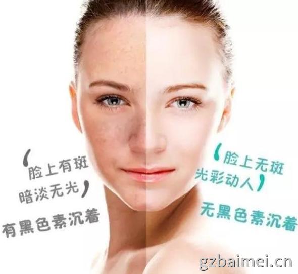 广州优质眼霜oem代工祛斑后能用哪一些护肤品